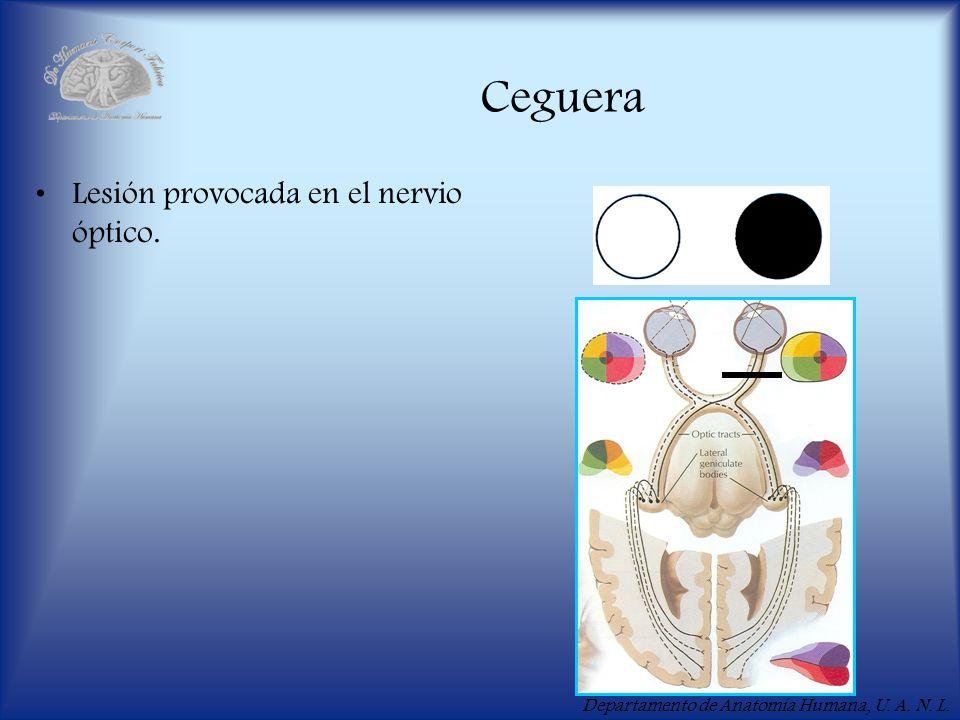 Departamento de Anatomía Humana, U. A. N. L. Ceguera Lesión provocada en el nervio óptico.