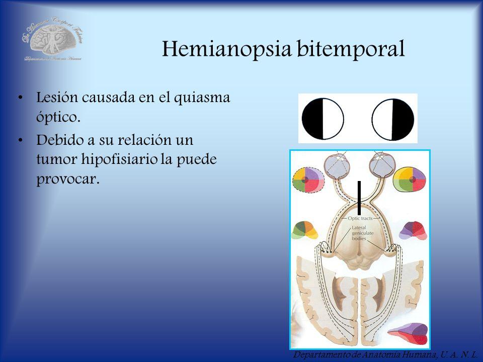 Departamento de Anatomía Humana, U. A. N. L. Hemianopsia bitemporal Lesión causada en el quiasma óptico. Debido a su relación un tumor hipofisiario la