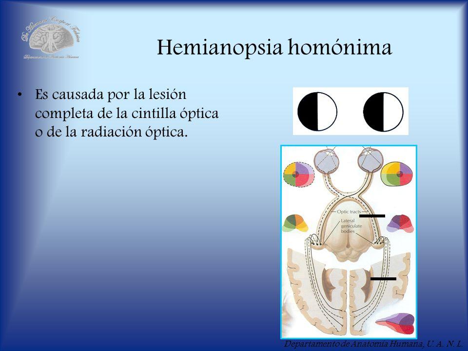 Departamento de Anatomía Humana, U. A. N. L. Hemianopsia homónima Es causada por la lesión completa de la cintilla óptica o de la radiación óptica.