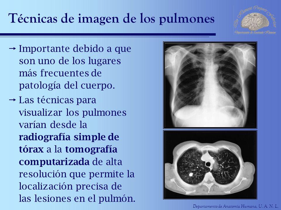 Departamento de Anatomía Humana, U. A. N. L. Técnicas de imagen de los pulmones Importante debido a que son uno de los lugares más frecuentes de patol