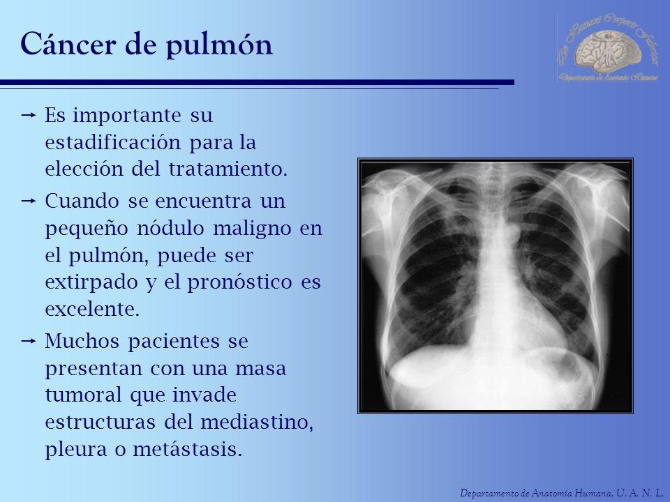 Departamento de Anatomía Humana, U. A. N. L. Cáncer de pulmón Es importante su estadificación para la elección del tratamiento. Cuando se encuentra un