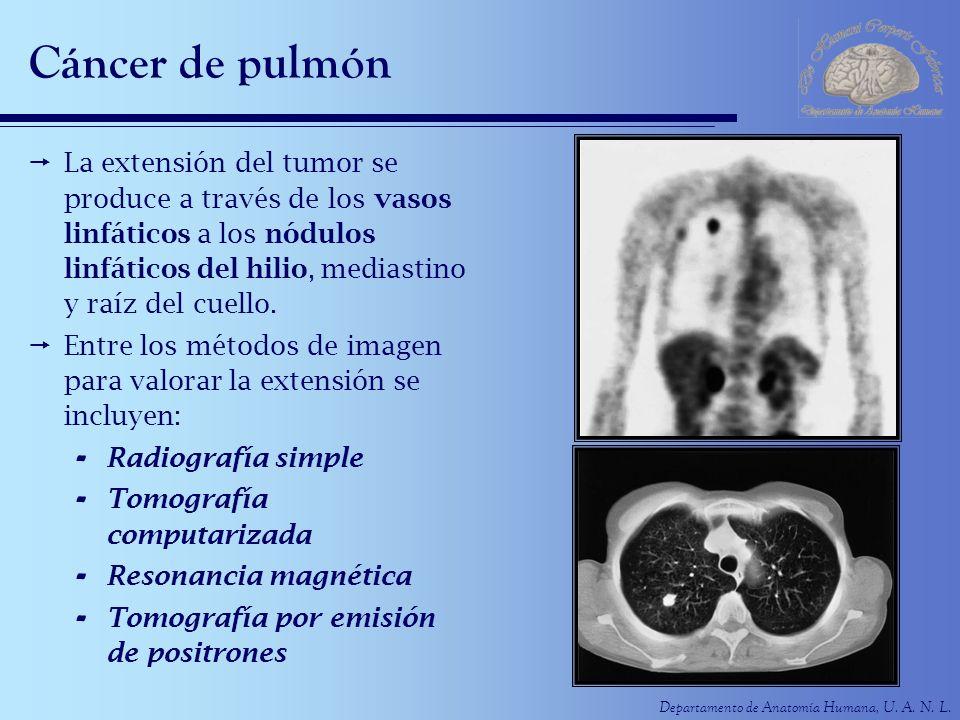 Departamento de Anatomía Humana, U. A. N. L. Cáncer de pulmón La extensión del tumor se produce a través de los vasos linfáticos a los nódulos linfáti
