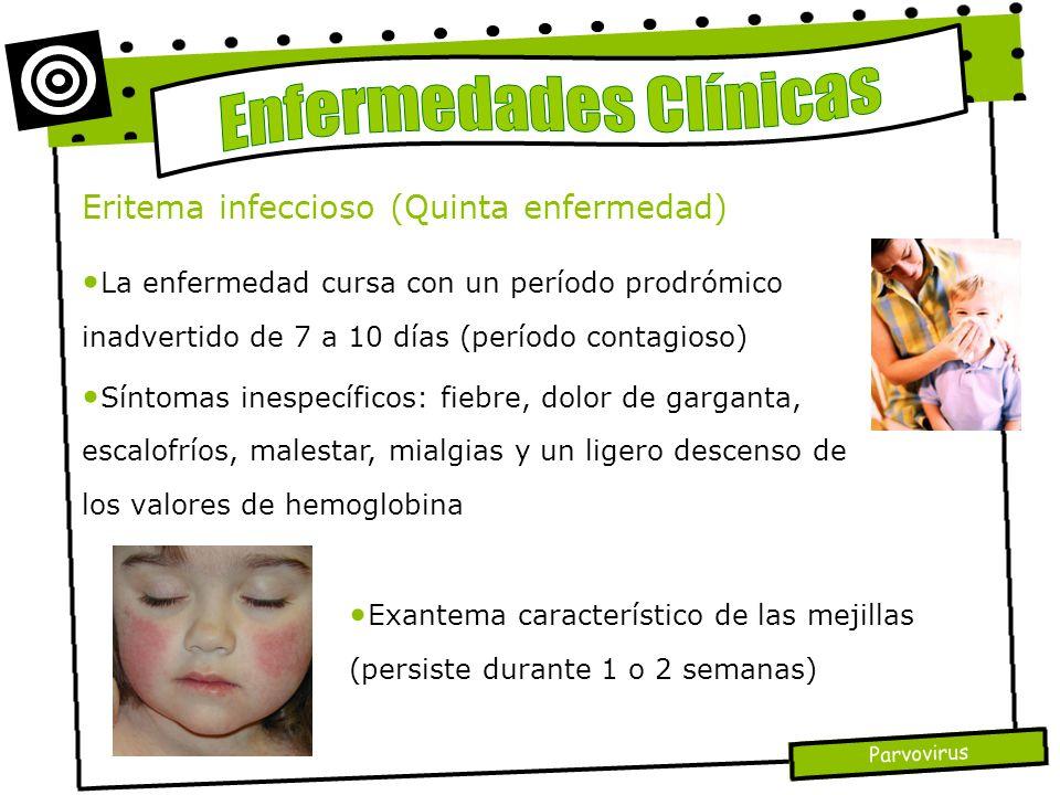 Parvovirus Eritema infeccioso (Quinta enfermedad) La enfermedad cursa con un período prodrómico inadvertido de 7 a 10 días (período contagioso) Síntom