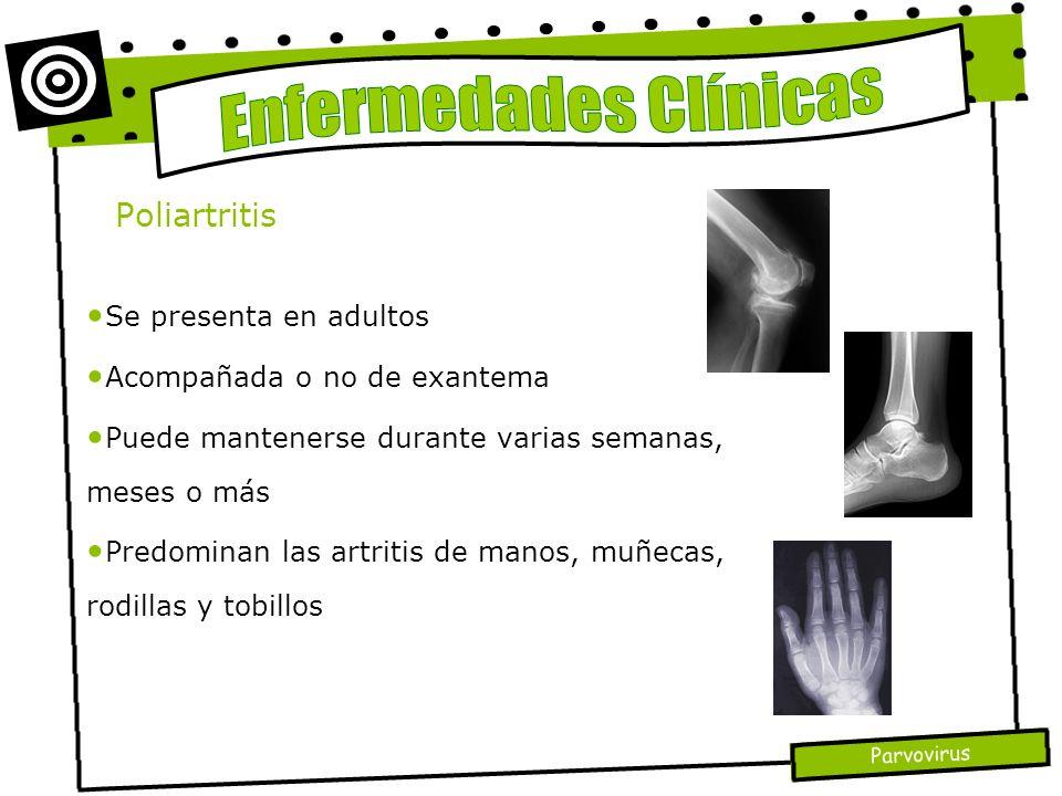 Parvovirus Poliartritis Se presenta en adultos Acompañada o no de exantema Puede mantenerse durante varias semanas, meses o más Predominan las artriti