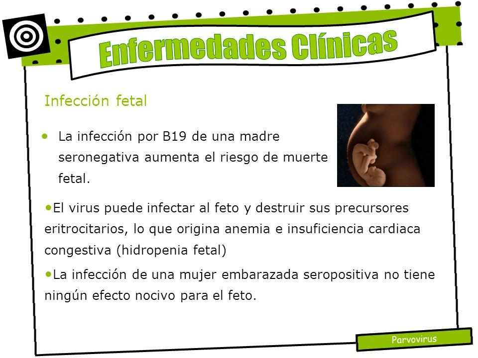 Parvovirus La infección por B19 de una madre seronegativa aumenta el riesgo de muerte fetal. Infección fetal El virus puede infectar al feto y destrui