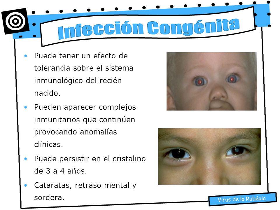Virus de la Rubéola Puede tener un efecto de tolerancia sobre el sistema inmunológico del recién nacido. Pueden aparecer complejos inmunitarios que co