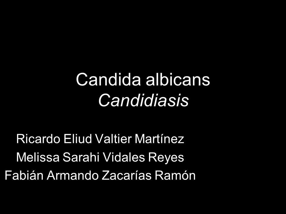Candida albicans Candidiasis Ricardo Eliud Valtier Martínez Melissa Sarahi Vidales Reyes Fabián Armando Zacarías Ramón