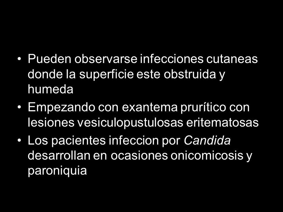 Pueden observarse infecciones cutaneas donde la superficie este obstruida y humeda Empezando con exantema prurítico con lesiones vesiculopustulosas eritematosas Los pacientes infeccion por Candida desarrollan en ocasiones onicomicosis y paroniquia