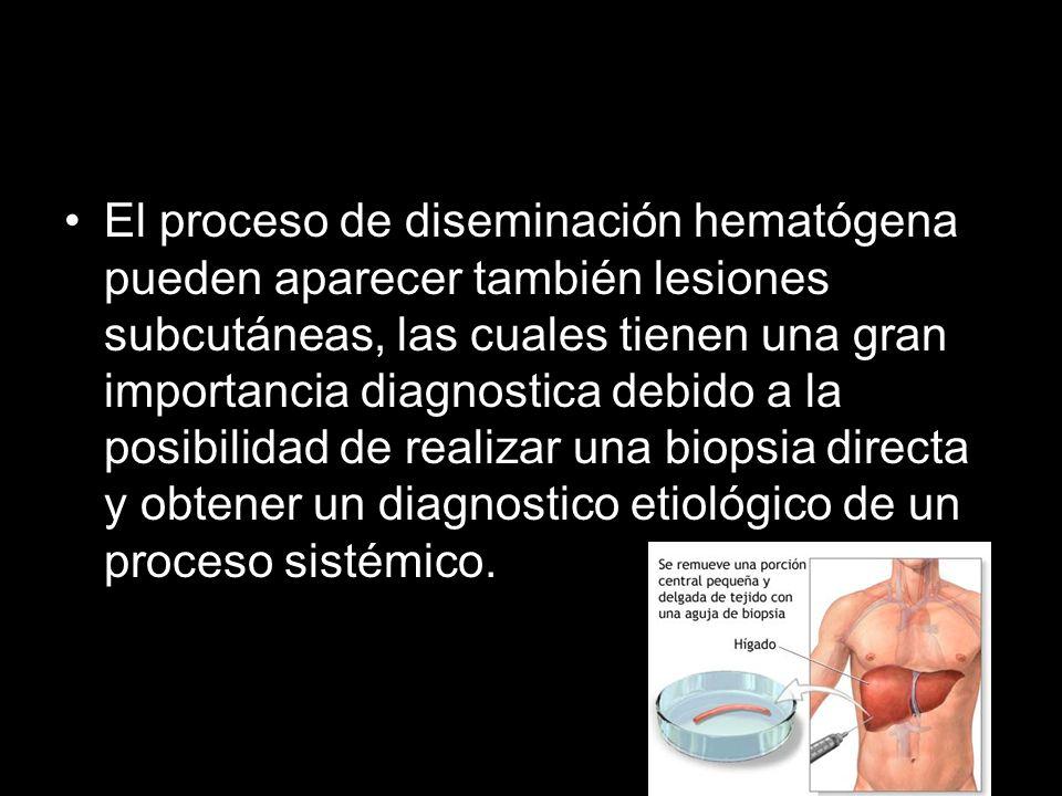 El proceso de diseminación hematógena pueden aparecer también lesiones subcutáneas, las cuales tienen una gran importancia diagnostica debido a la posibilidad de realizar una biopsia directa y obtener un diagnostico etiológico de un proceso sistémico.