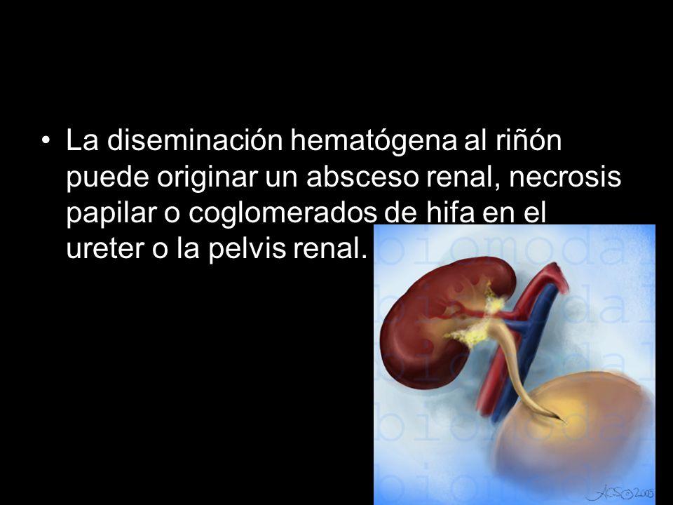 La diseminación hematógena al riñón puede originar un absceso renal, necrosis papilar o coglomerados de hifa en el ureter o la pelvis renal.
