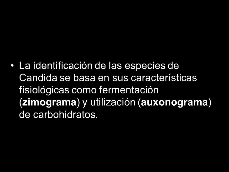 La identificación de las especies de Candida se basa en sus características fisiológicas como fermentación (zimograma) y utilización (auxonograma) de carbohidratos.
