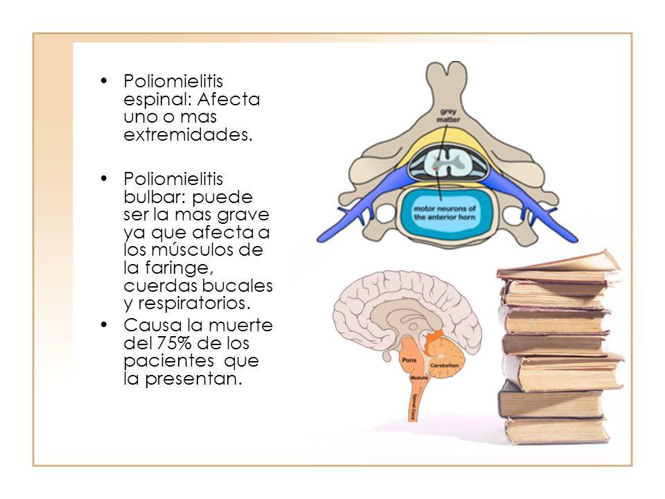 Poliomielitis espinal: Afecta uno o mas extremidades. Poliomielitis bulbar: puede ser la mas grave ya que afecta a los músculos de la faringe, cuerdas