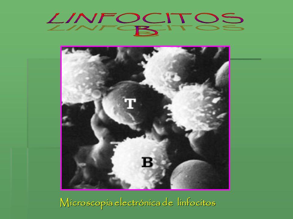 Microscopia electrónica de linfocitos