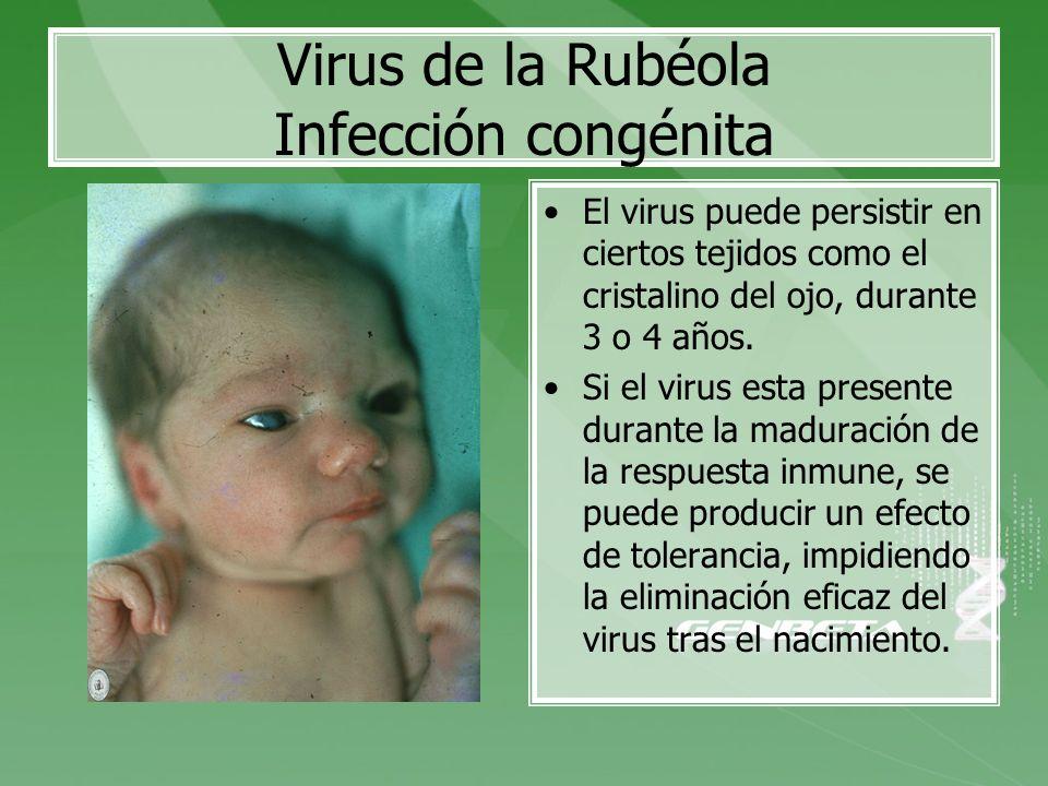 Virus de la Rubéola Infección congénita El virus puede persistir en ciertos tejidos como el cristalino del ojo, durante 3 o 4 años. Si el virus esta p