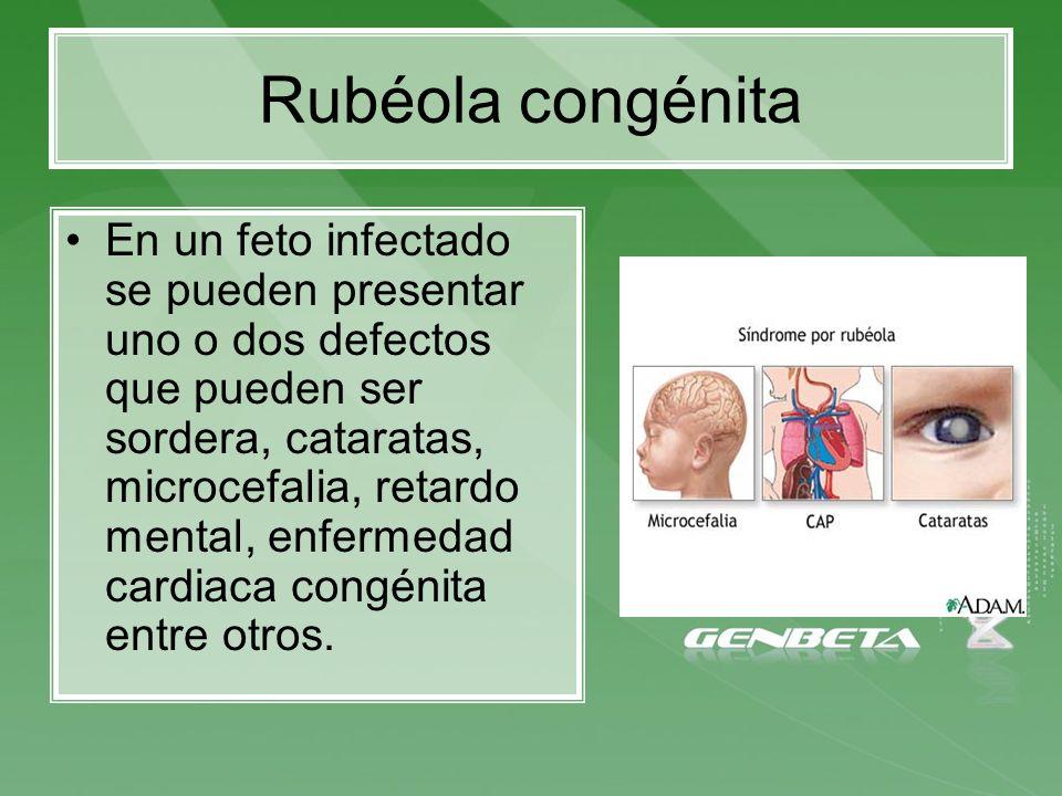 En un feto infectado se pueden presentar uno o dos defectos que pueden ser sordera, cataratas, microcefalia, retardo mental, enfermedad cardiaca congé