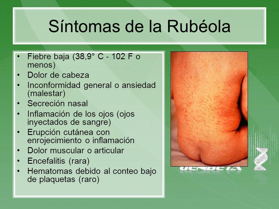 Síntomas de la Rubéola Fiebre baja (38,9° C - 102 F o menos) Dolor de cabeza Inconformidad general o ansiedad (malestar) Secreción nasal Inflamación d