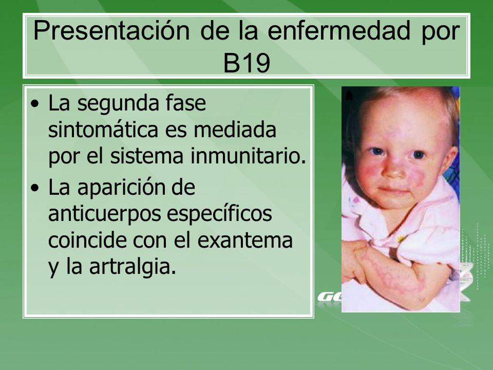 Presentación de la enfermedad por B19 La segunda fase sintomática es mediada por el sistema inmunitario. La aparición de anticuerpos específicos coinc