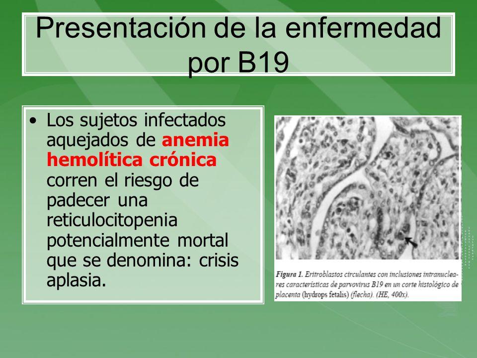 Presentación de la enfermedad por B19 Los sujetos infectados aquejados de anemia hemolítica crónica corren el riesgo de padecer una reticulocitopenia