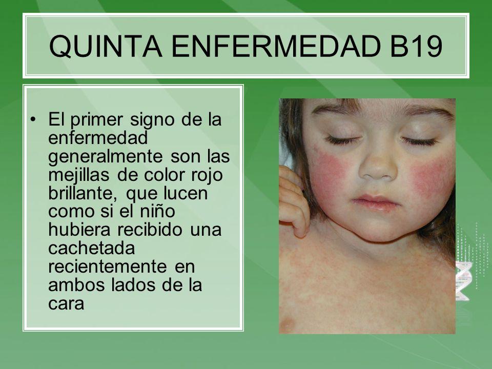 QUINTA ENFERMEDAD B19 El primer signo de la enfermedad generalmente son las mejillas de color rojo brillante, que lucen como si el niño hubiera recibi