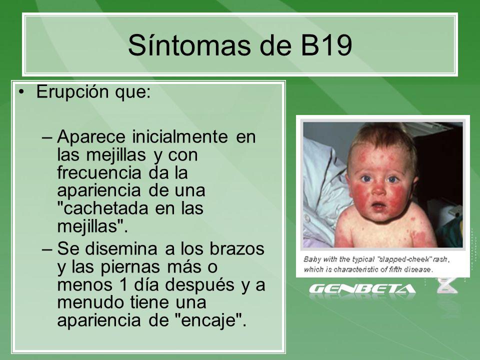 Síntomas de B19 Erupción que: –Aparece inicialmente en las mejillas y con frecuencia da la apariencia de una