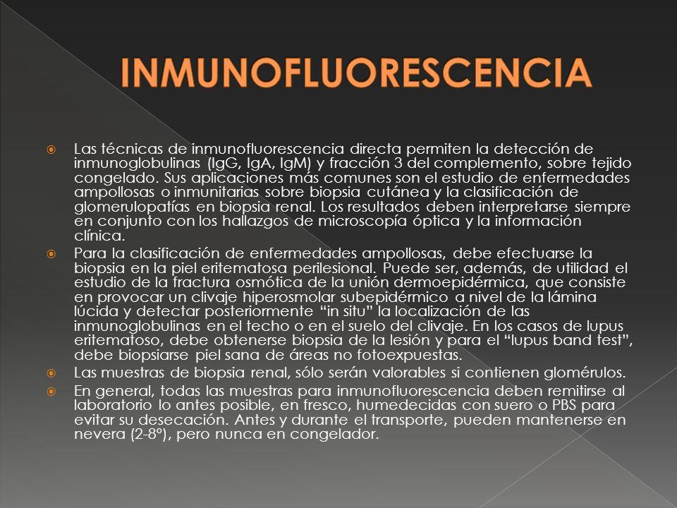 Las técnicas de inmunofluorescencia directa permiten la detección de inmunoglobulinas (IgG, IgA, IgM) y fracción 3 del complemento, sobre tejido conge