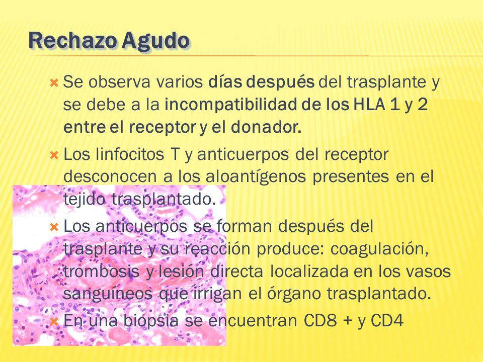 Rechazo Agudo Se observa varios días después del trasplante y se debe a la incompatibilidad de los HLA 1 y 2 entre el receptor y el donador. Los linfo