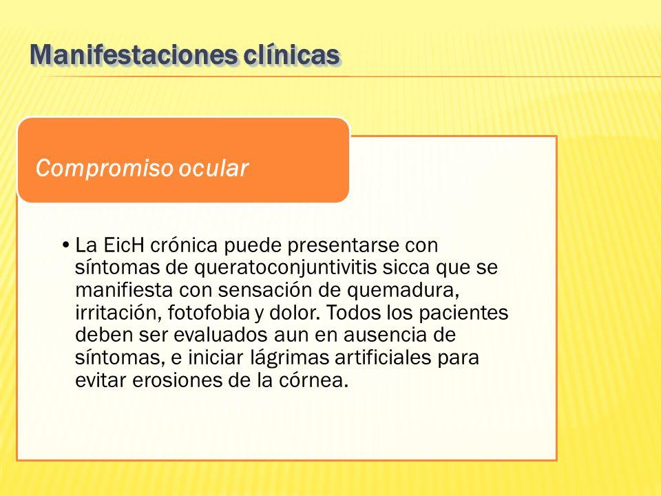 La EicH crónica puede presentarse con síntomas de queratoconjuntivitis sicca que se manifiesta con sensación de quemadura, irritación, fotofobia y dol