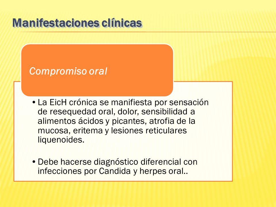 La EicH crónica se manifiesta por sensación de resequedad oral, dolor, sensibilidad a alimentos ácidos y picantes, atrofia de la mucosa, eritema y les