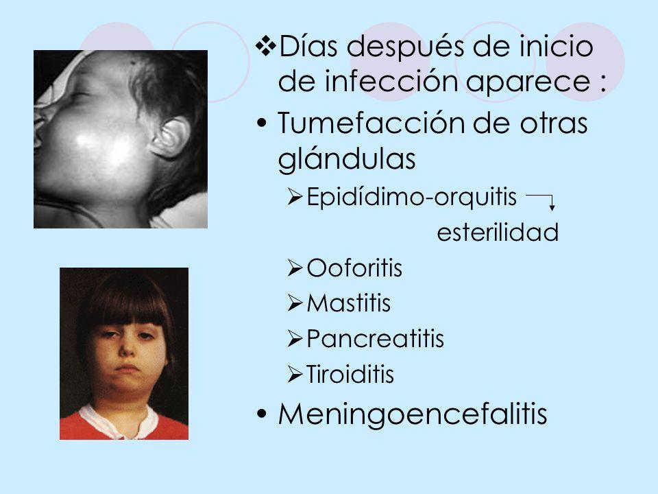 Días después de inicio de infección aparece : Tumefacción de otras glándulas Epidídimo-orquitis esterilidad Ooforitis Mastitis Pancreatitis Tiroiditis