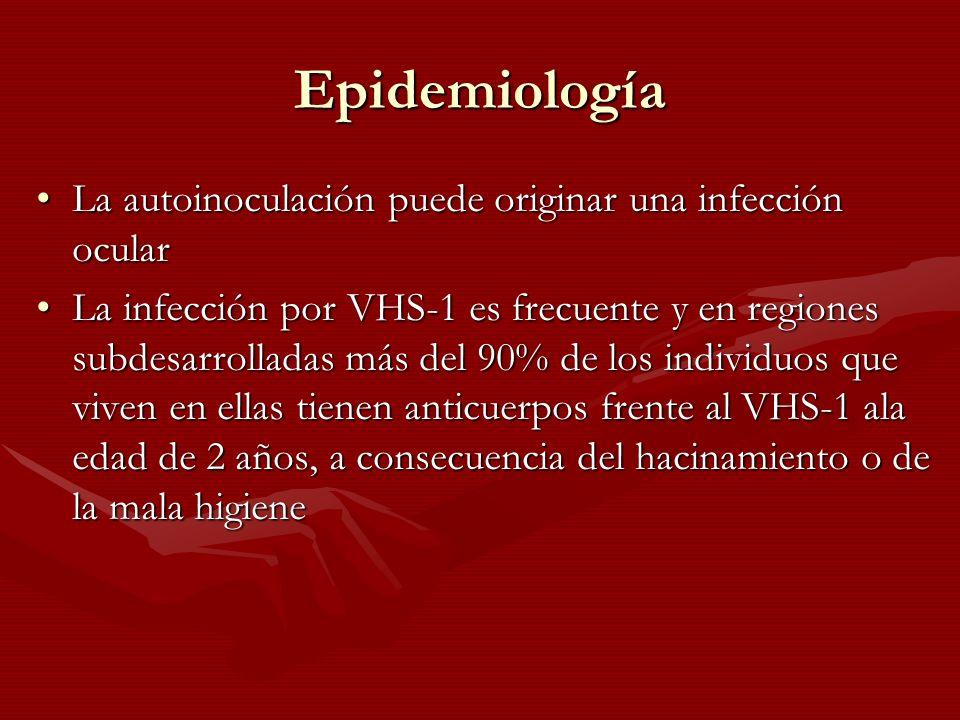 Epidemiología La autoinoculación puede originar una infección ocularLa autoinoculación puede originar una infección ocular La infección por VHS-1 es f
