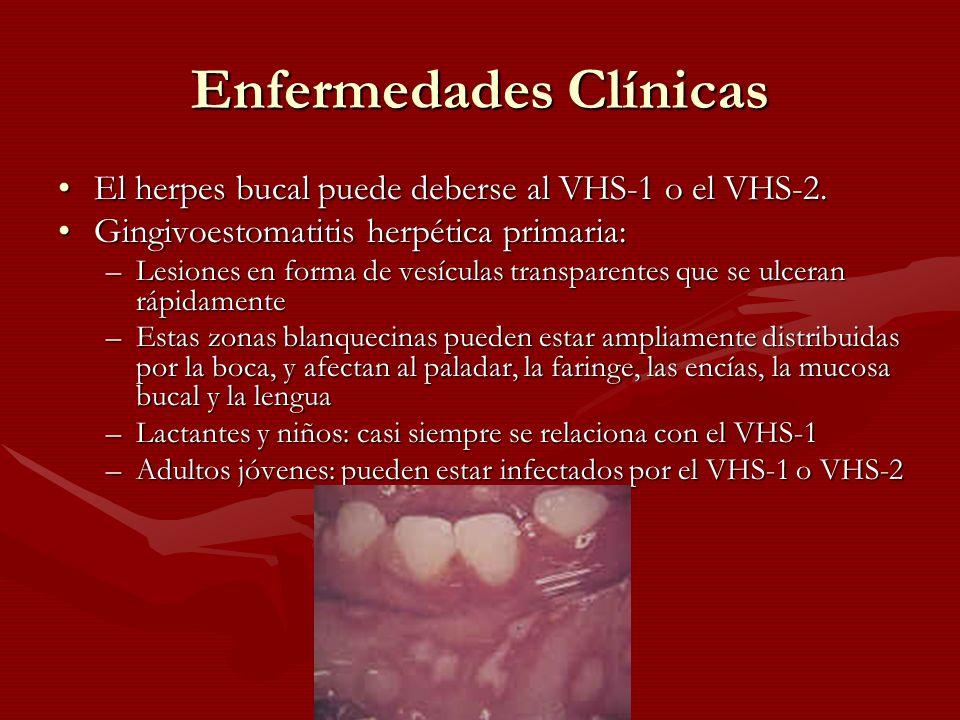 Enfermedades Clínicas El herpes bucal puede deberse al VHS-1 o el VHS-2.El herpes bucal puede deberse al VHS-1 o el VHS-2. Gingivoestomatitis herpétic