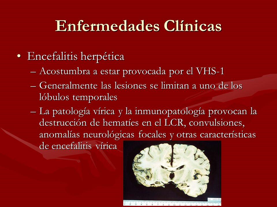 Enfermedades Clínicas Encefalitis herpéticaEncefalitis herpética –Acostumbra a estar provocada por el VHS-1 –Generalmente las lesiones se limitan a un