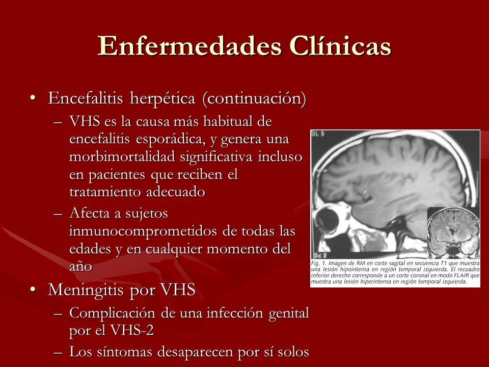 Enfermedades Clínicas Encefalitis herpética (continuación)Encefalitis herpética (continuación) –VHS es la causa más habitual de encefalitis esporádica