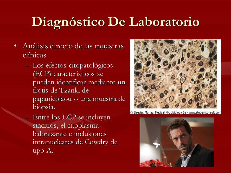 Diagnóstico De Laboratorio Análisis directo de las muestras clínicasAnálisis directo de las muestras clínicas –Los efectos citopatológicos (ECP) carac