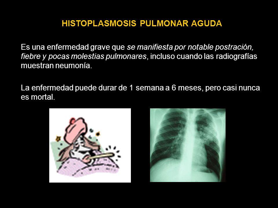 HISTOPLASMOSIS PULMONAR AGUDA Es una enfermedad grave que se manifiesta por notable postración, fiebre y pocas molestias pulmonares, incluso cuando la