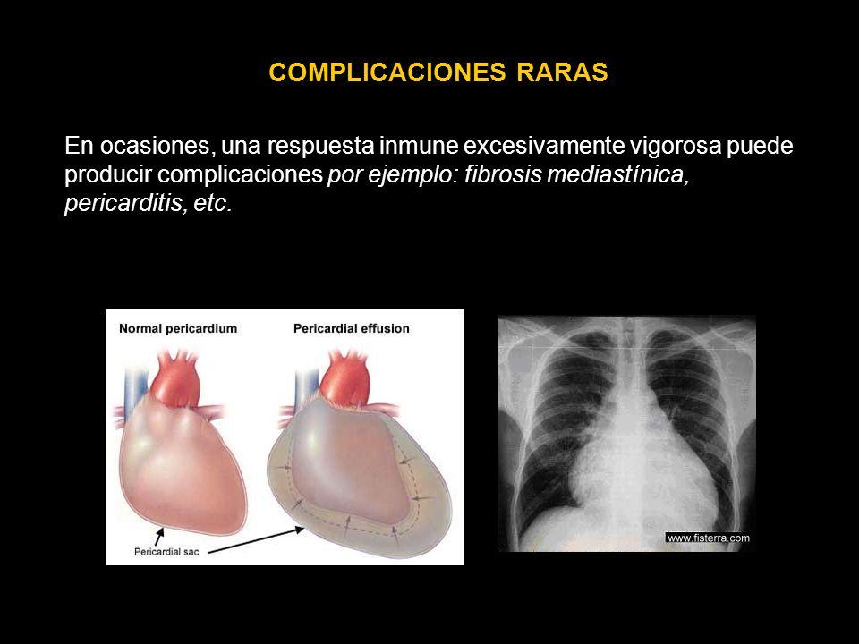 COMPLICACIONES RARAS En ocasiones, una respuesta inmune excesivamente vigorosa puede producir complicaciones por ejemplo: fibrosis mediastínica, peric