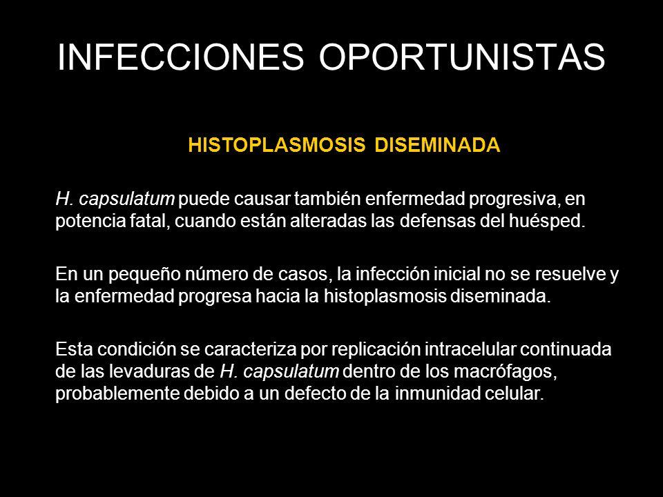 INFECCIONES OPORTUNISTAS HISTOPLASMOSIS DISEMINADA H. capsulatum puede causar también enfermedad progresiva, en potencia fatal, cuando están alteradas