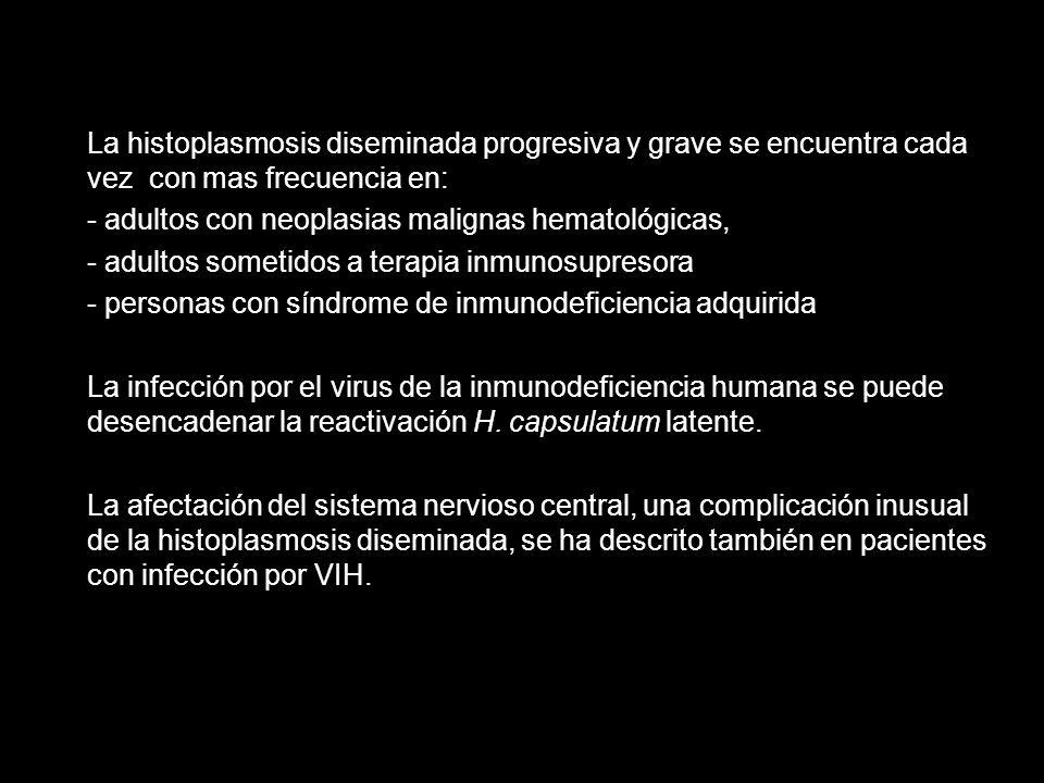 La histoplasmosis diseminada progresiva y grave se encuentra cada vez con mas frecuencia en: - adultos con neoplasias malignas hematológicas, - adulto