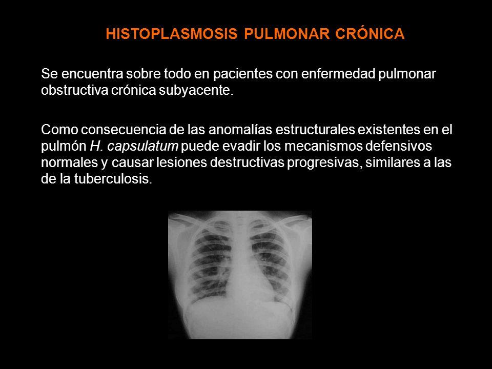 HISTOPLASMOSIS PULMONAR CRÓNICA Se encuentra sobre todo en pacientes con enfermedad pulmonar obstructiva crónica subyacente. Como consecuencia de las