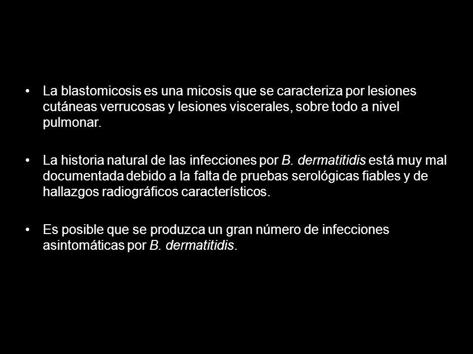 La blastomicosis es una micosis que se caracteriza por lesiones cutáneas verrucosas y lesiones viscerales, sobre todo a nivel pulmonar. La historia na