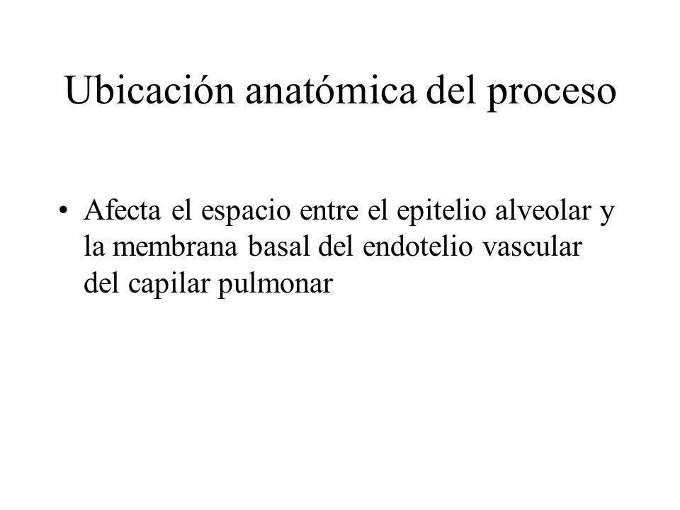 Afecta el espacio entre el epitelio alveolar y la membrana basal del endotelio vascular del capilar pulmonar Ubicación anatómica del proceso