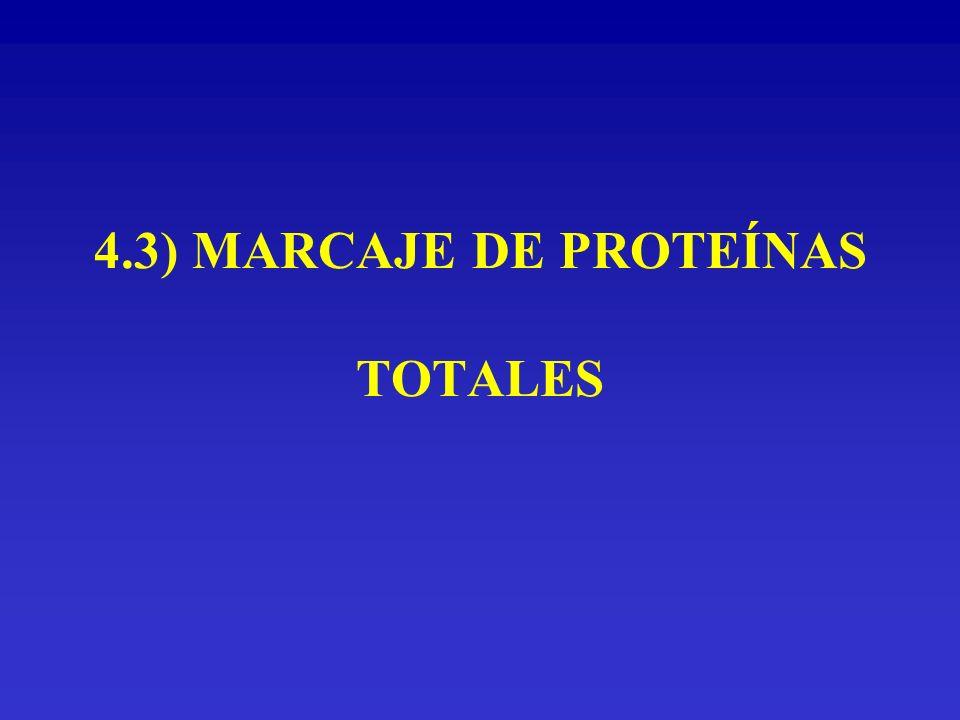 4.3) MARCAJE DE PROTEÍNAS TOTALES