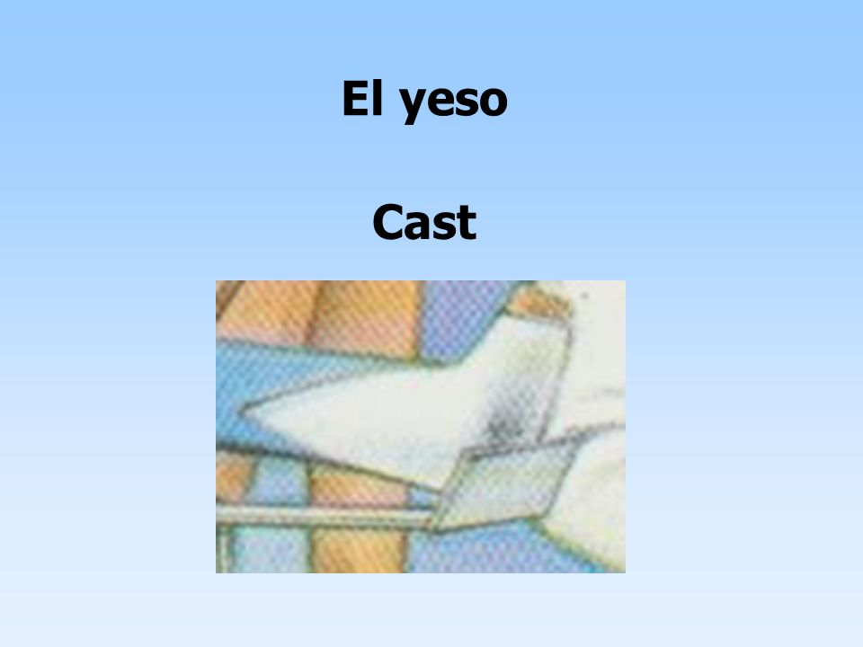 El yeso Cast