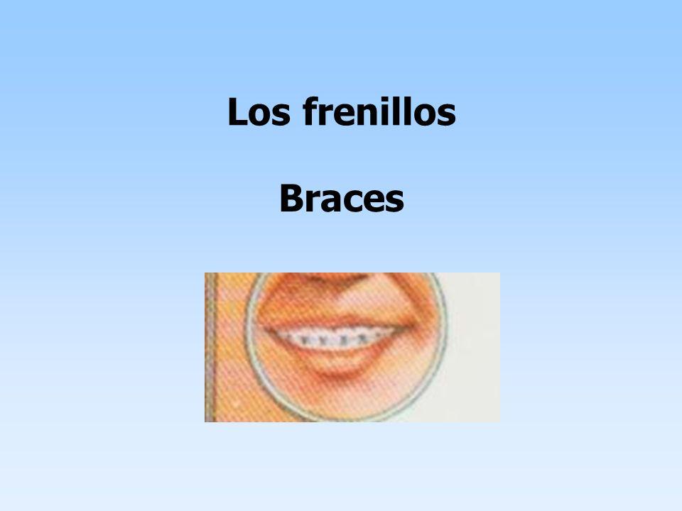 Los frenillos Braces