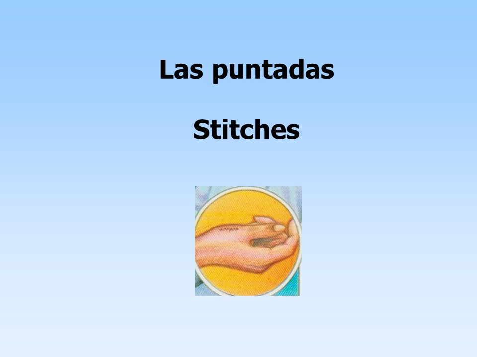 Las puntadas Stitches