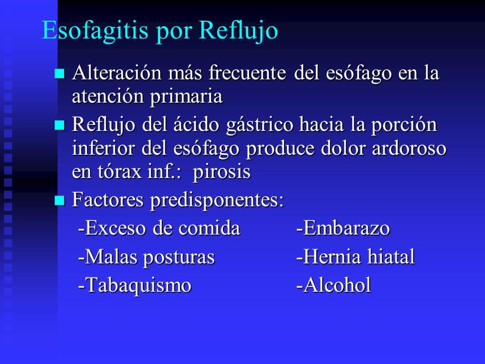 Esofagitis por Reflujo Alteración más frecuente del esófago en la atención primaria Alteración más frecuente del esófago en la atención primaria Reflu