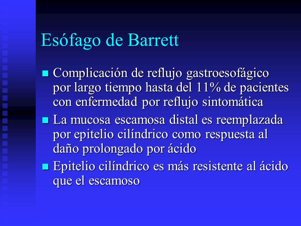 Esófago de Barrett Complicación de reflujo gastroesofágico por largo tiempo hasta del 11% de pacientes con enfermedad por reflujo sintomática Complica