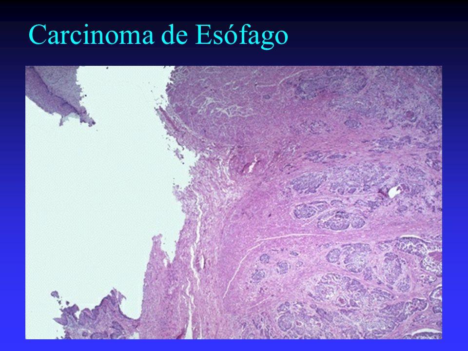 Carcinoma de Esófago