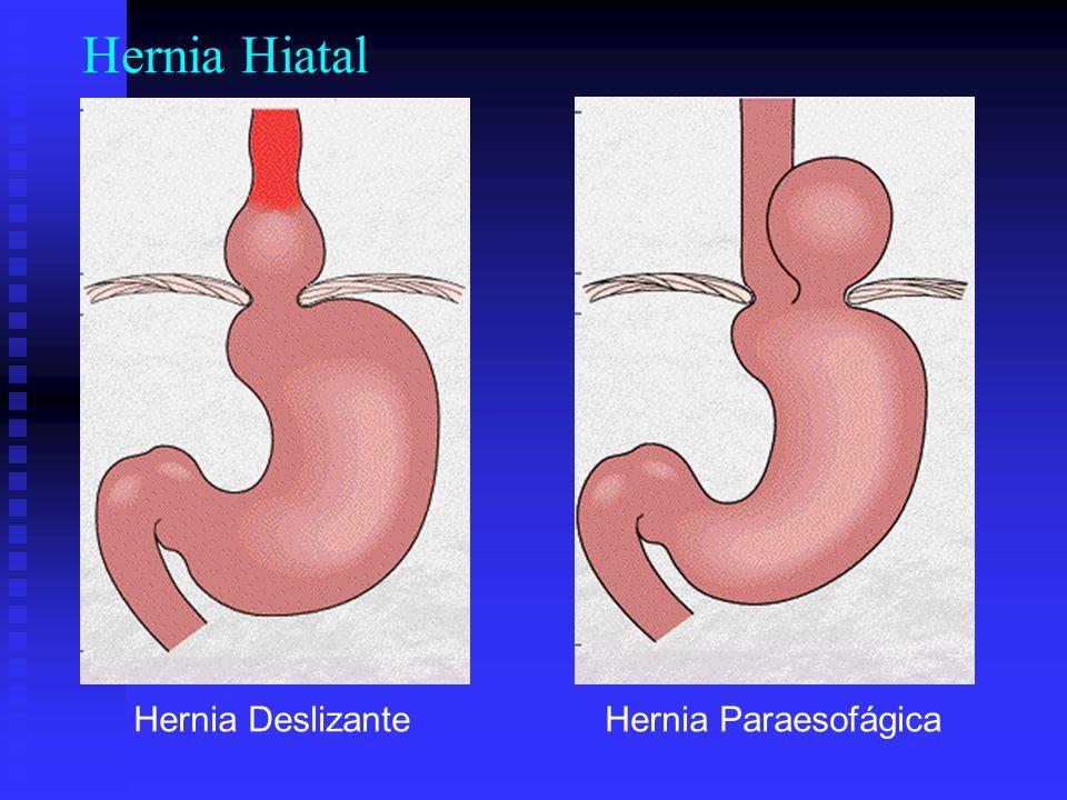 Hernia Hiatal Hernia DeslizanteHernia Paraesofágica