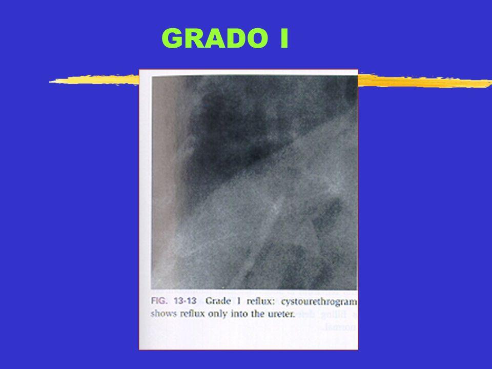 GRAD0 II